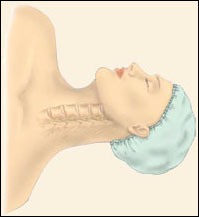 Anterior Cervical Discectomy w/ Fusion